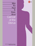 Uterine Cancer booklet cover